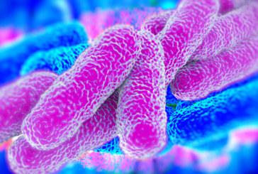 Legionella prevention